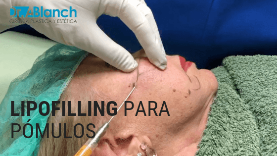 lipofilling o lipotransferencia para pomulos